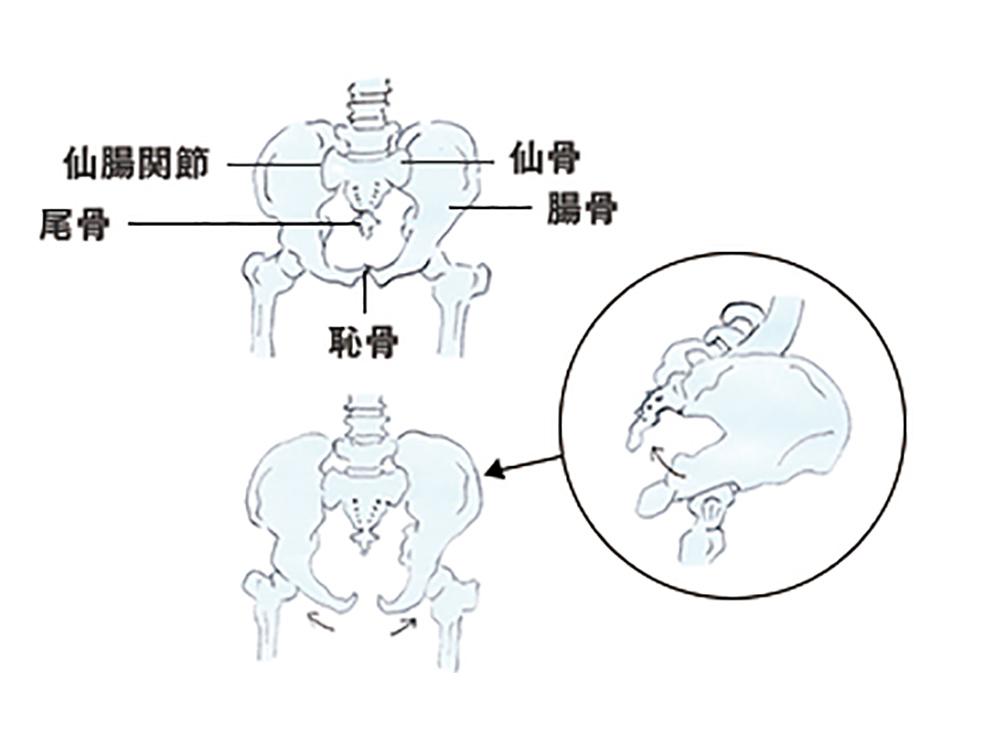 骨盤に起こる変化が体に大きな影響を与えています